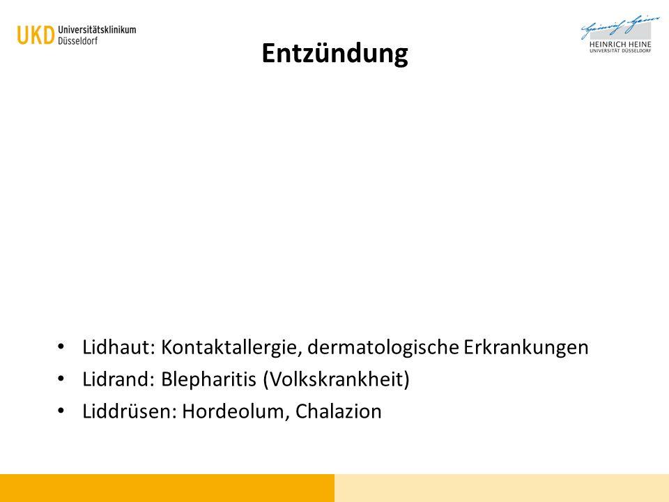 Entzündung Lidhaut: Kontaktallergie, dermatologische Erkrankungen