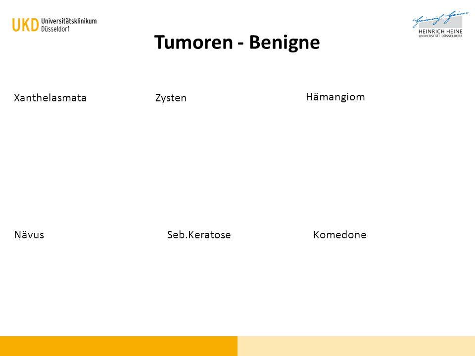 Tumoren - Benigne Xanthelasmata Zysten Hämangiom Nävus Seb.Keratose