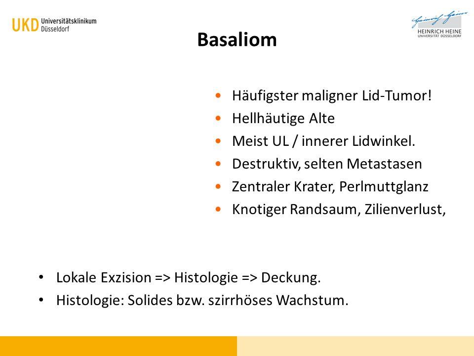 Basaliom Häufigster maligner Lid-Tumor! Hellhäutige Alte