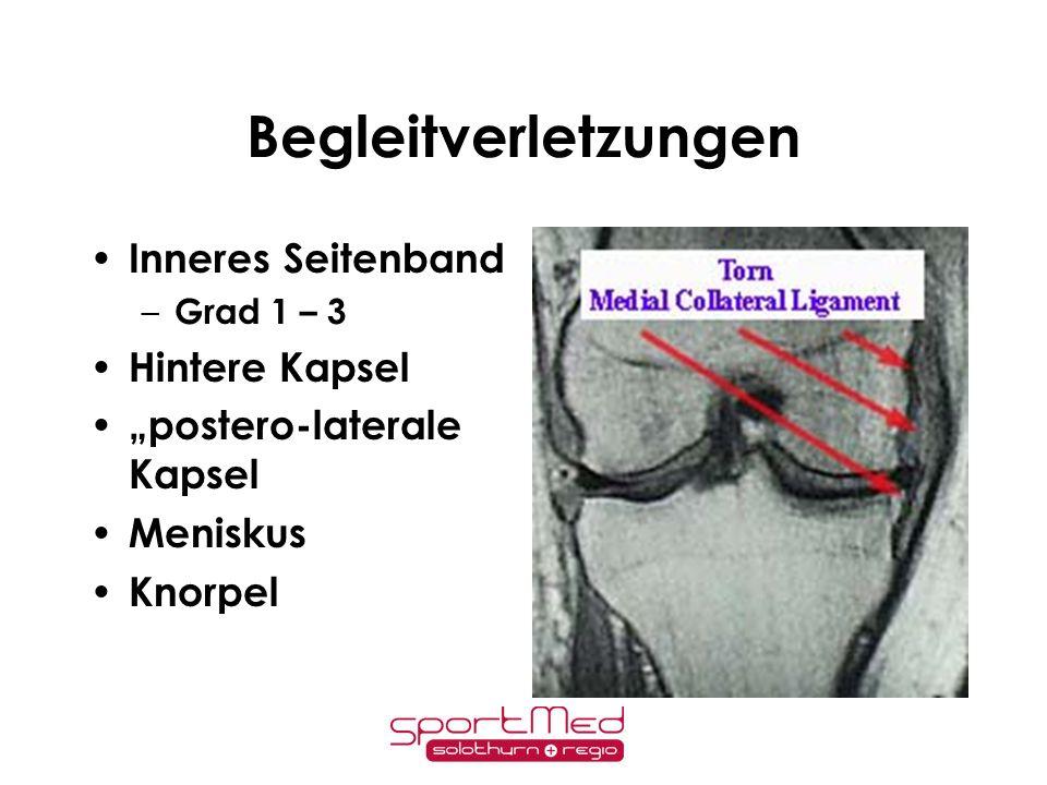 Begleitverletzungen Inneres Seitenband Hintere Kapsel
