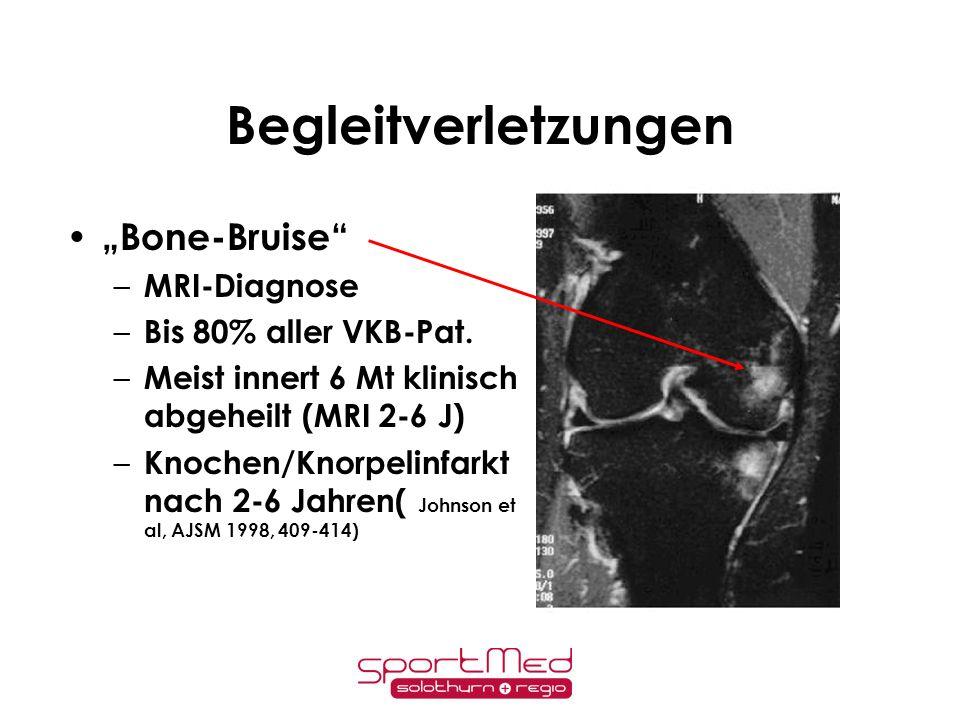 "Begleitverletzungen ""Bone-Bruise MRI-Diagnose Bis 80% aller VKB-Pat."