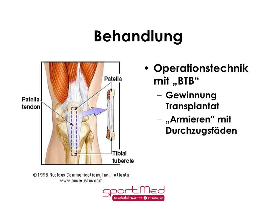 """Behandlung Operationstechnik mit """"BTB Gewinnung Transplantat"""