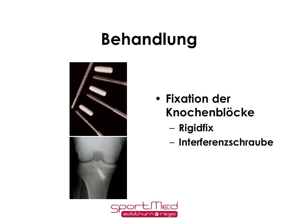 Behandlung Fixation der Knochenblöcke Rigidfix Interferenzschraube