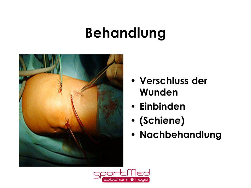 Behandlung Verschluss der Wunden Einbinden (Schiene) Nachbehandlung