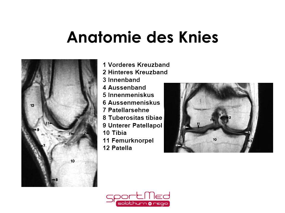 Anatomie des Knies 1 Vorderes Kreuzband 2 Hinteres Kreuzband