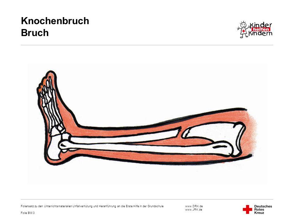 Knochenbruch Bruch Foliensatz zu den Unterrichtsmaterialien Unfallverhütung und Heranführung an die Erste Hilfe in der Grundschule.