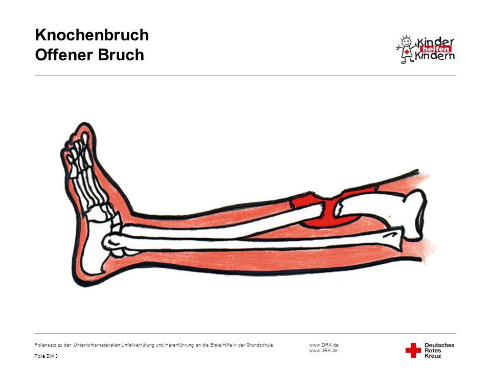 Knochenbruch Offener Bruch