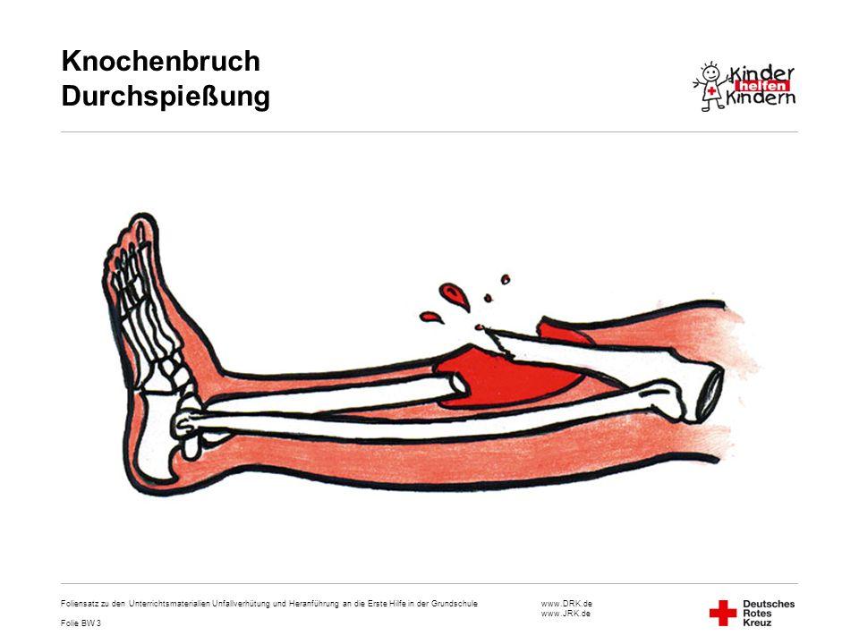 Knochenbruch Durchspießung