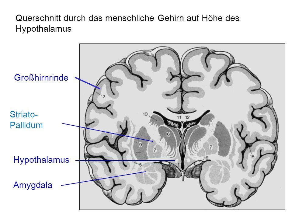 Querschnitt durch das menschliche Gehirn auf Höhe des Hypothalamus