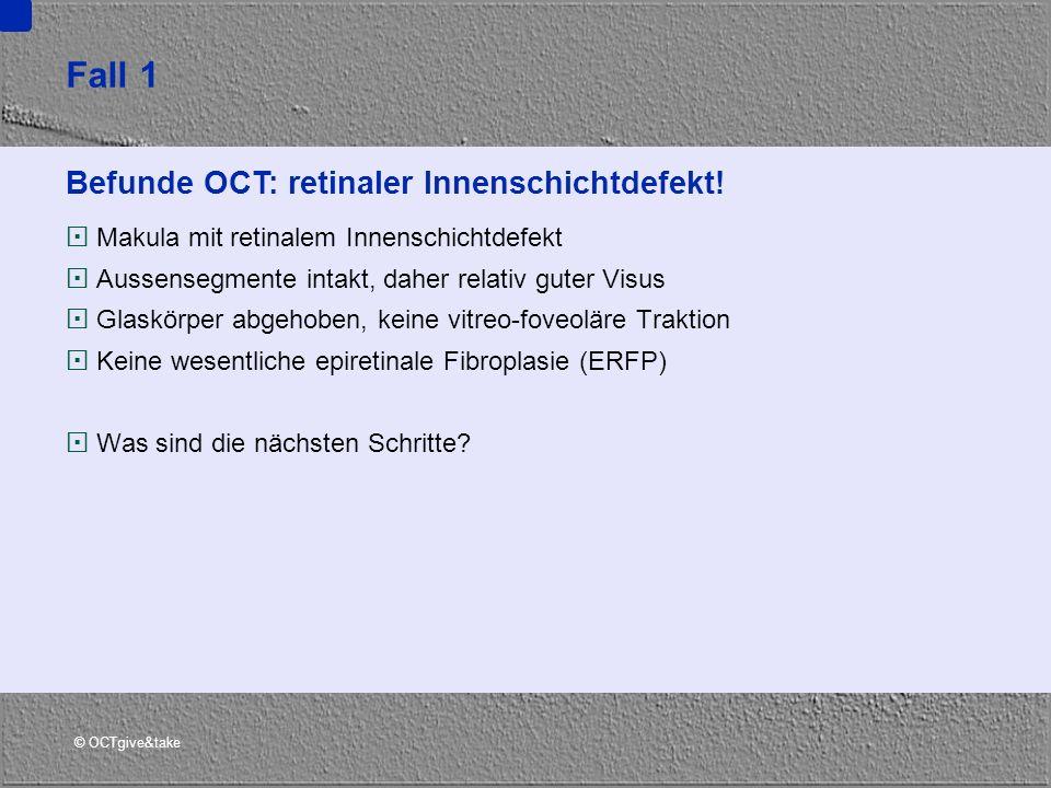 Fall 1 Befunde OCT: retinaler Innenschichtdefekt!