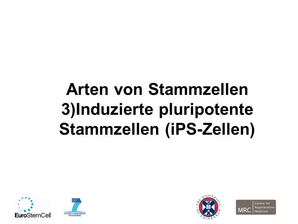 3)Induzierte pluripotente Stammzellen (iPS-Zellen)