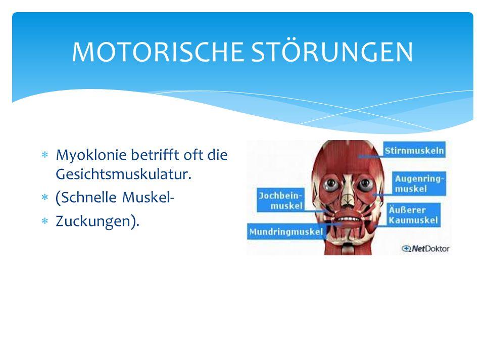 MOTORISCHE STÖRUNGEN Myoklonie betrifft oft die Gesichtsmuskulatur.