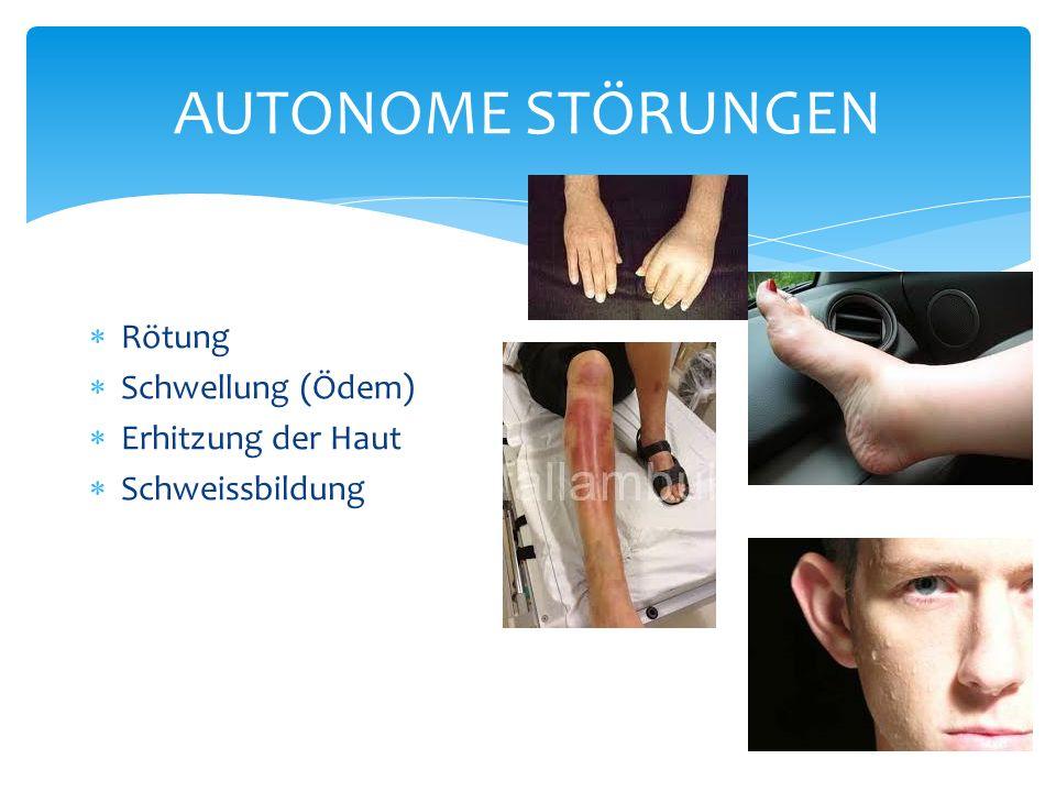 AUTONOME STÖRUNGEN Rötung Schwellung (Ödem) Erhitzung der Haut