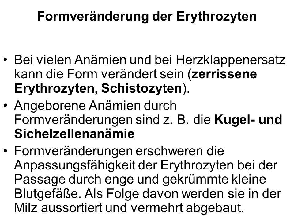 Formveränderung der Erythrozyten