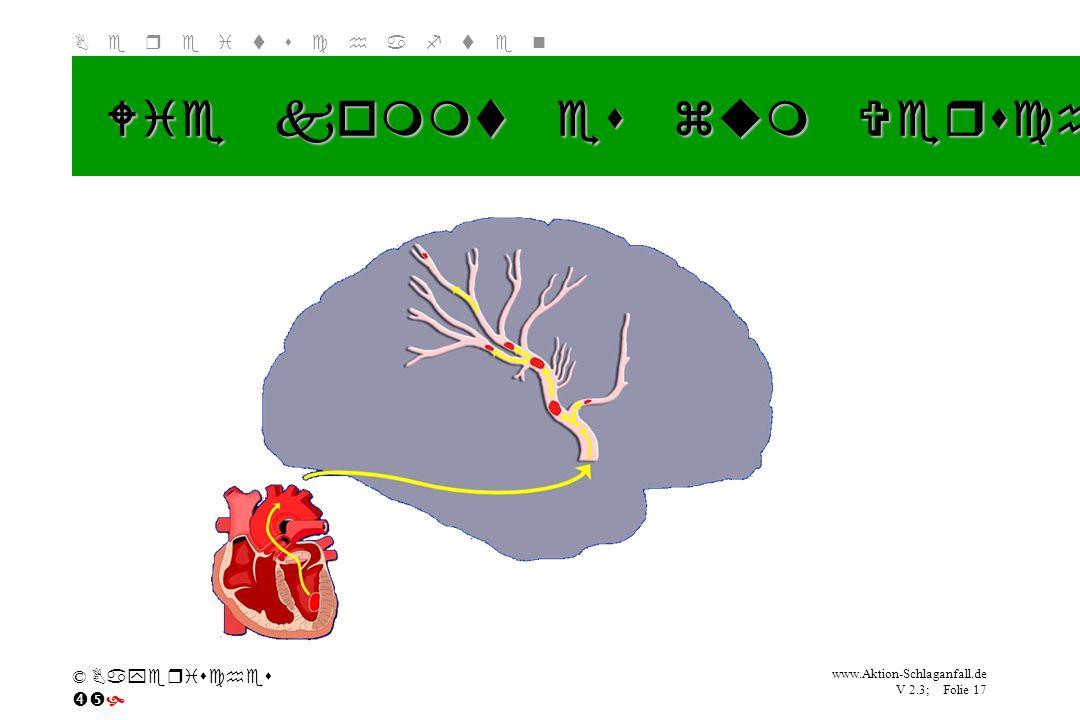 Wie kommt es zum Verschluss eines Blutgefäßes (2)