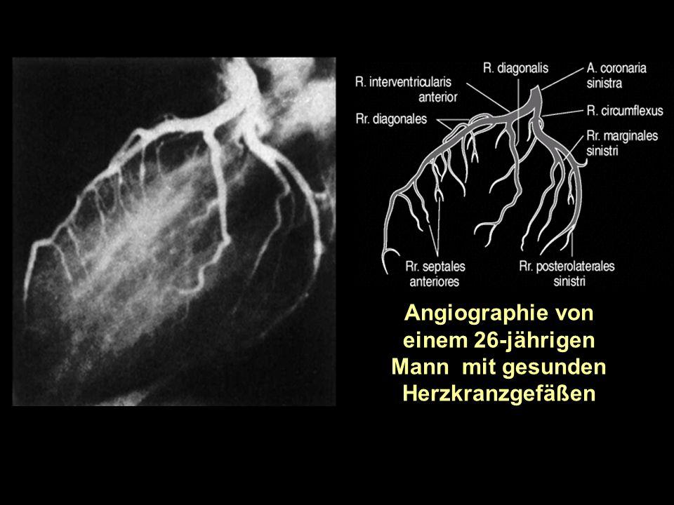 Angiographie von einem 26-jährigen Mann mit gesunden Herzkranzgefäßen