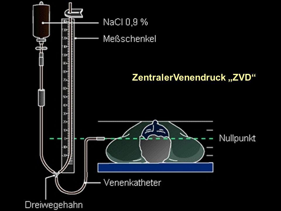 """ZentralerVenendruck """"ZVD"""