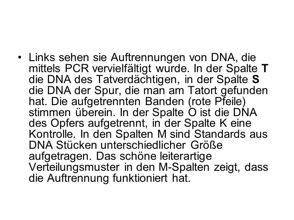 Links sehen sie Auftrennungen von DNA, die mittels PCR vervielfältigt wurde.