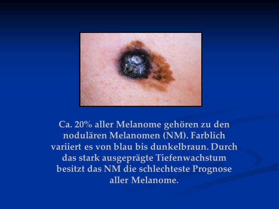 Ca. 20% aller Melanome gehören zu den