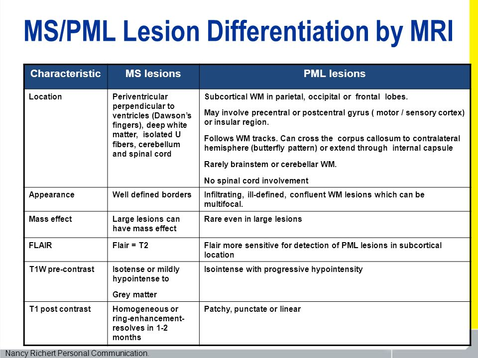 MS/PML Lesion Differentiation by MRI