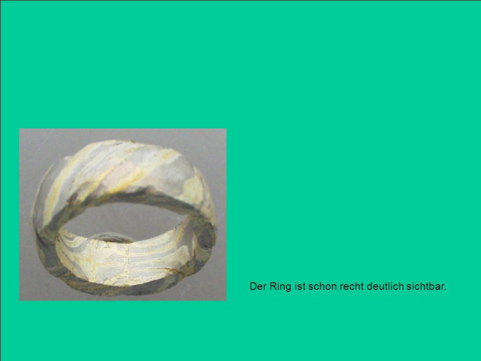 Der Ring ist schon recht deutlich sichtbar.