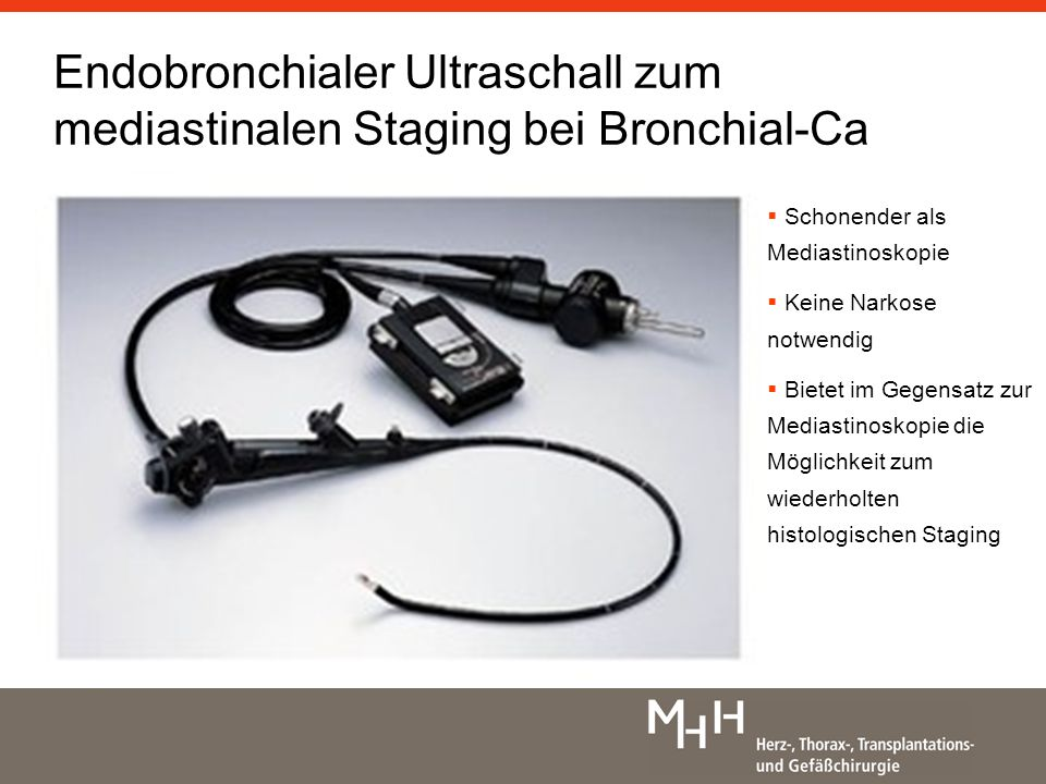 Endobronchialer Ultraschall zum mediastinalen Staging bei Bronchial-Ca