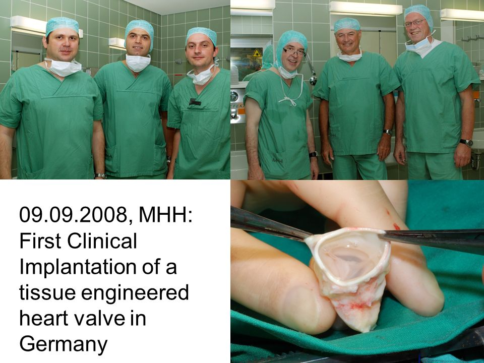 , MHH: First Clinical Implantation of a tissue engineered heart valve in Germany