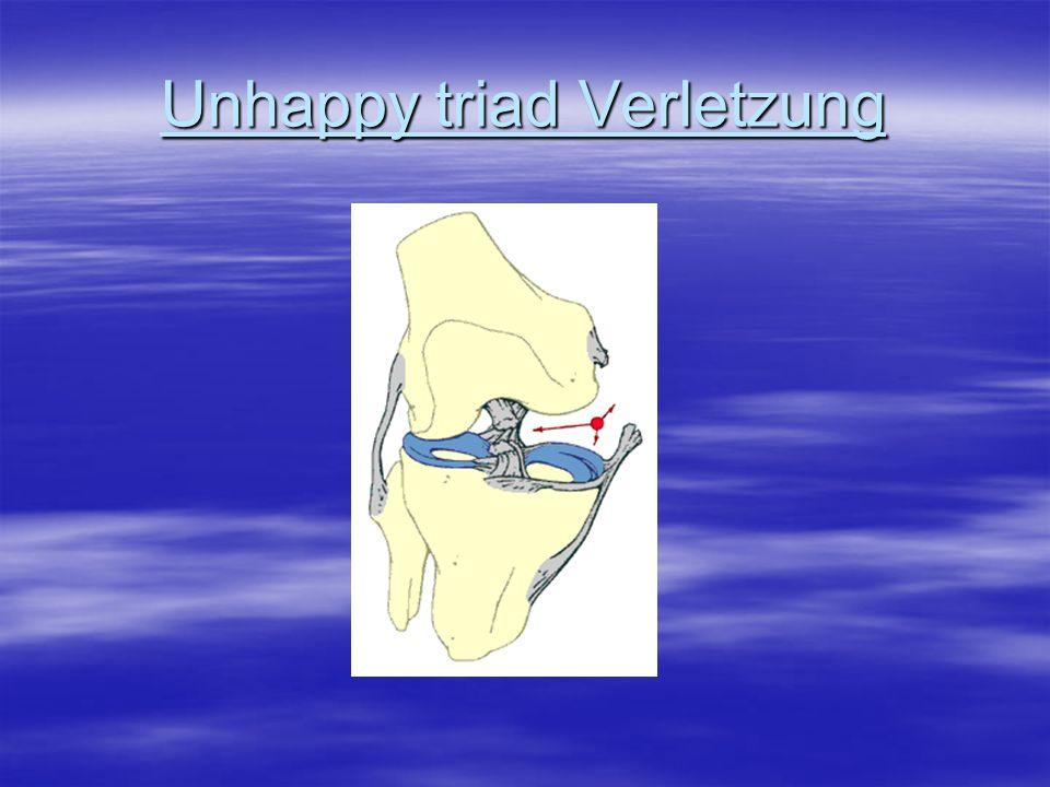 Unhappy triad Verletzung