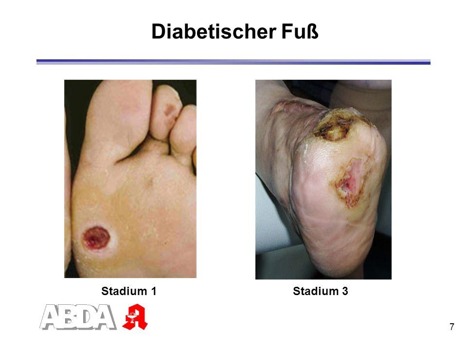 Diabetischer Fuß Stadium 1 Stadium 3