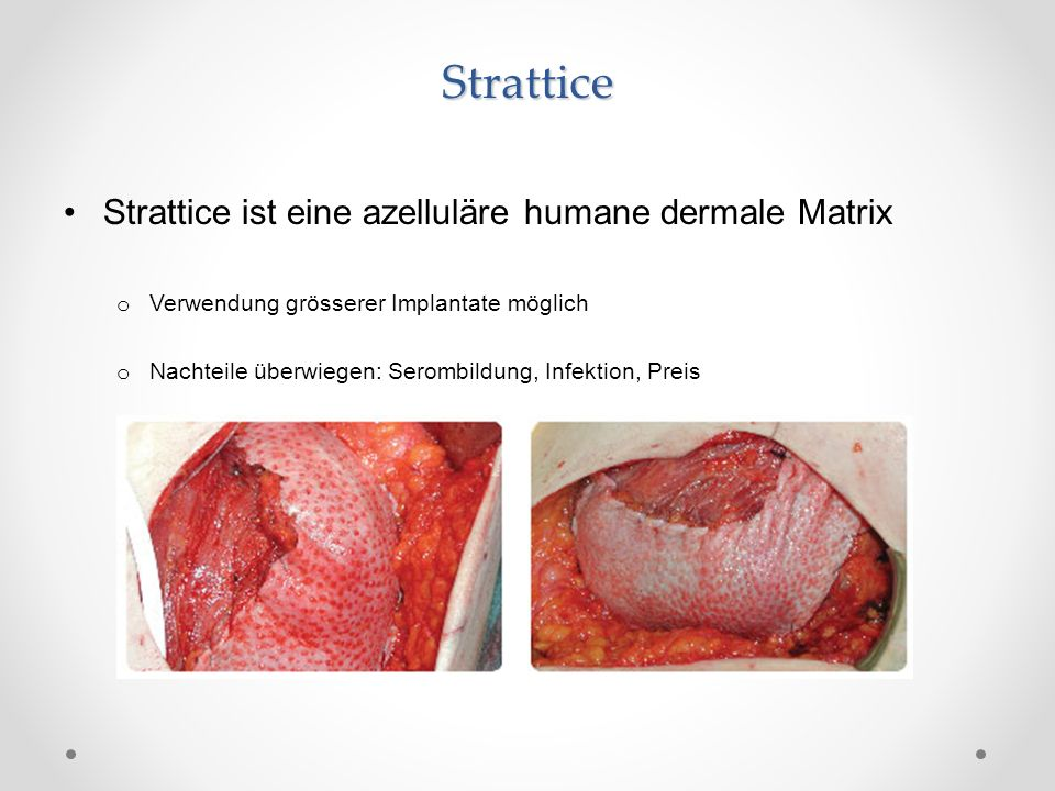 Strattice Strattice ist eine azelluläre humane dermale Matrix