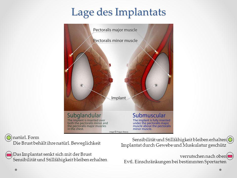 Lage des Implantats Sensibilität und Stillfähigkeit bleiben erhalten
