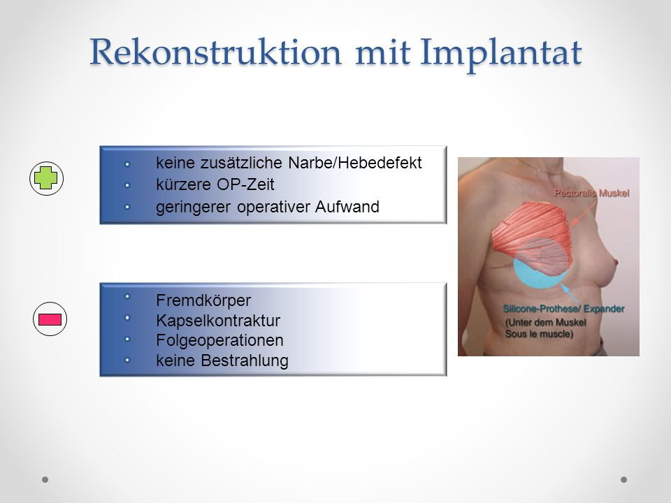 Rekonstruktion mit Implantat