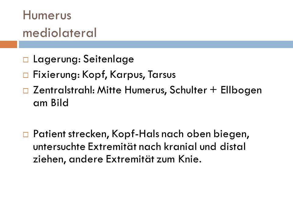 Humerus mediolateral Lagerung: Seitenlage
