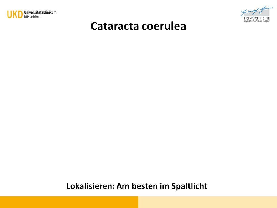Cataracta coerulea Lokalisieren: Am besten im Spaltlicht