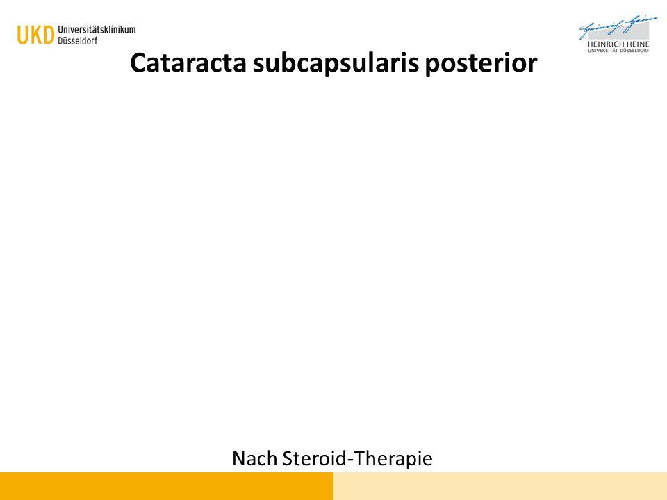 Cataracta subcapsularis posterior
