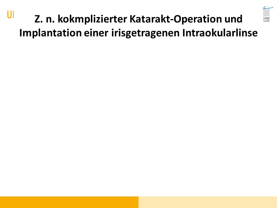 Z. n. kokmplizierter Katarakt-Operation und Implantation einer irisgetragenen Intraokularlinse
