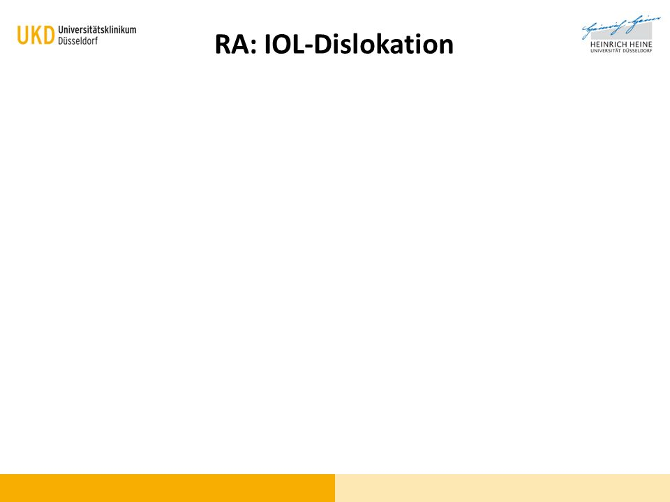 Wo / Was ist das Problem RA: IOL-Dislokation