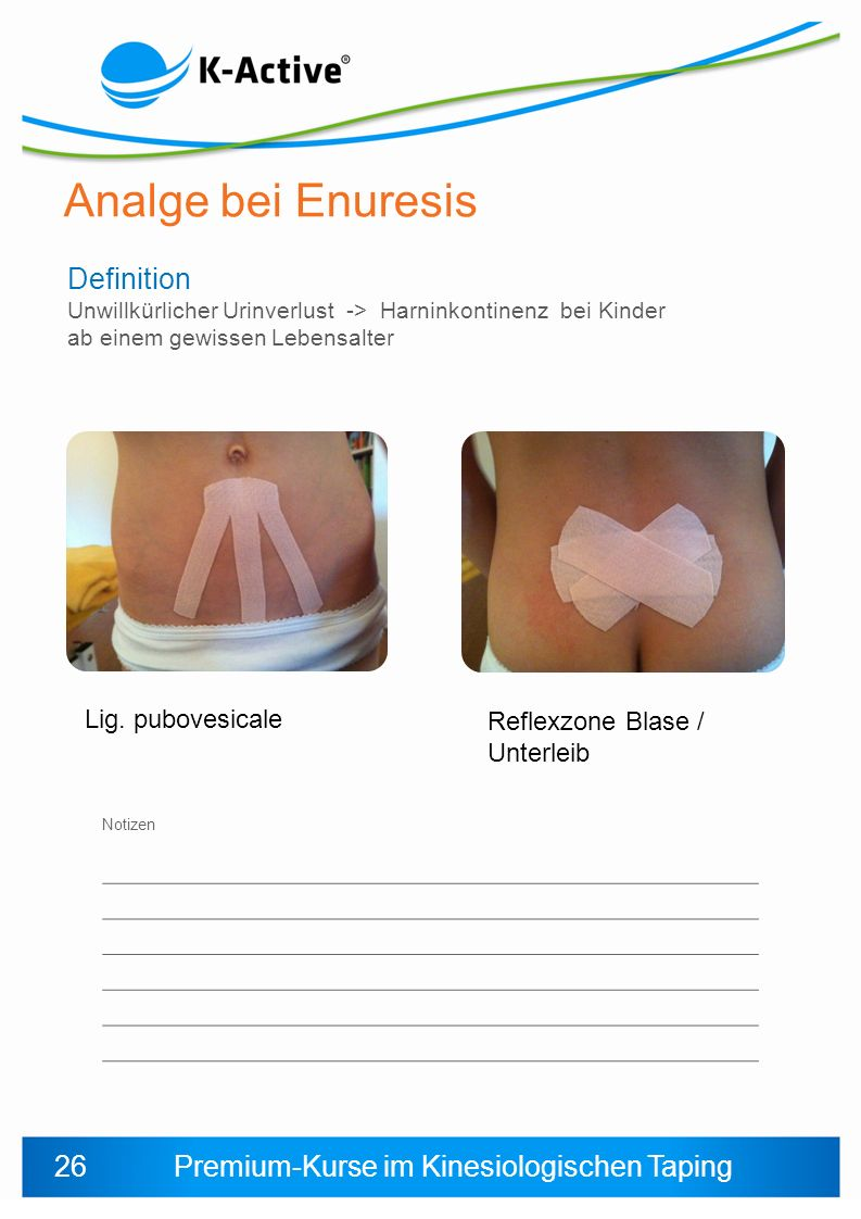 Analge bei Enuresis Definition 26 Lig. pubovesicale