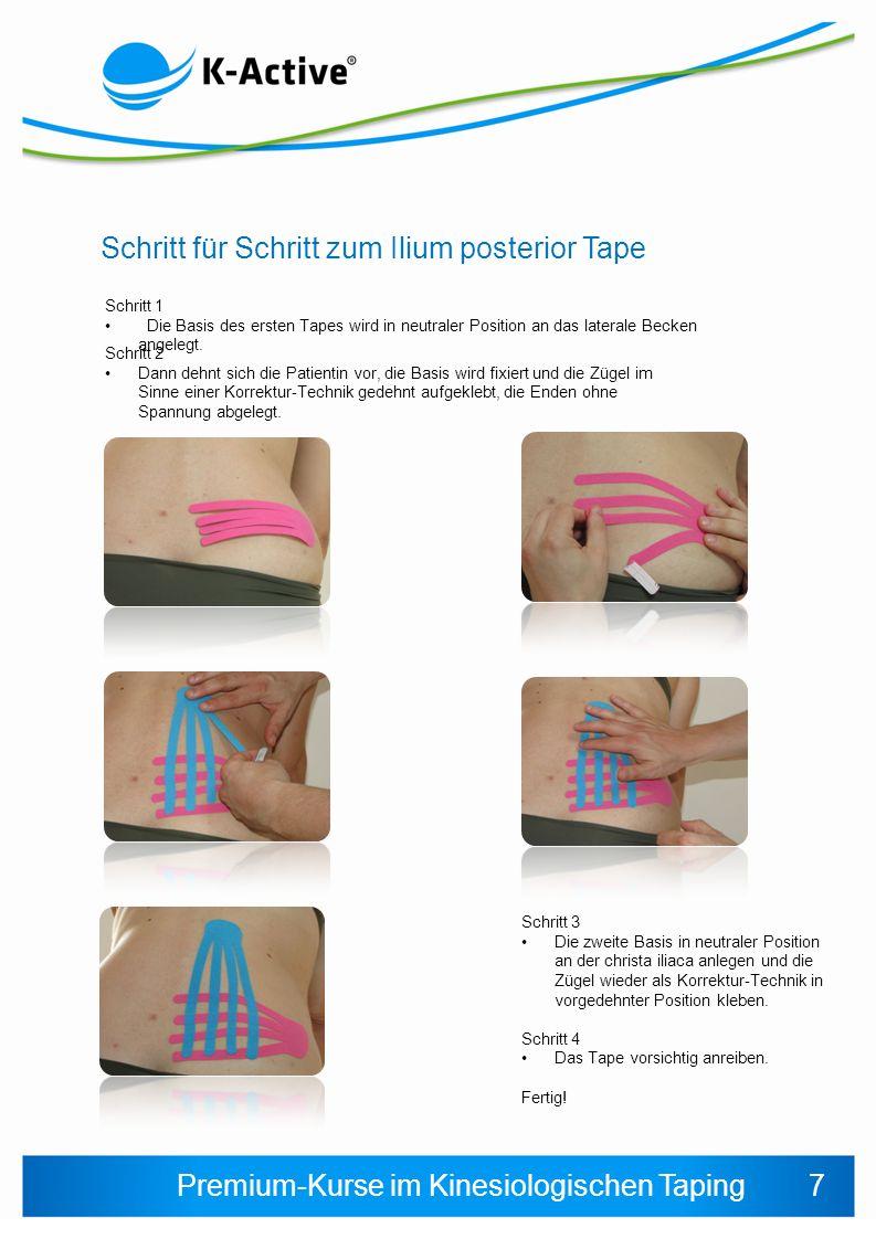 Schritt für Schritt zum Ilium posterior Tape