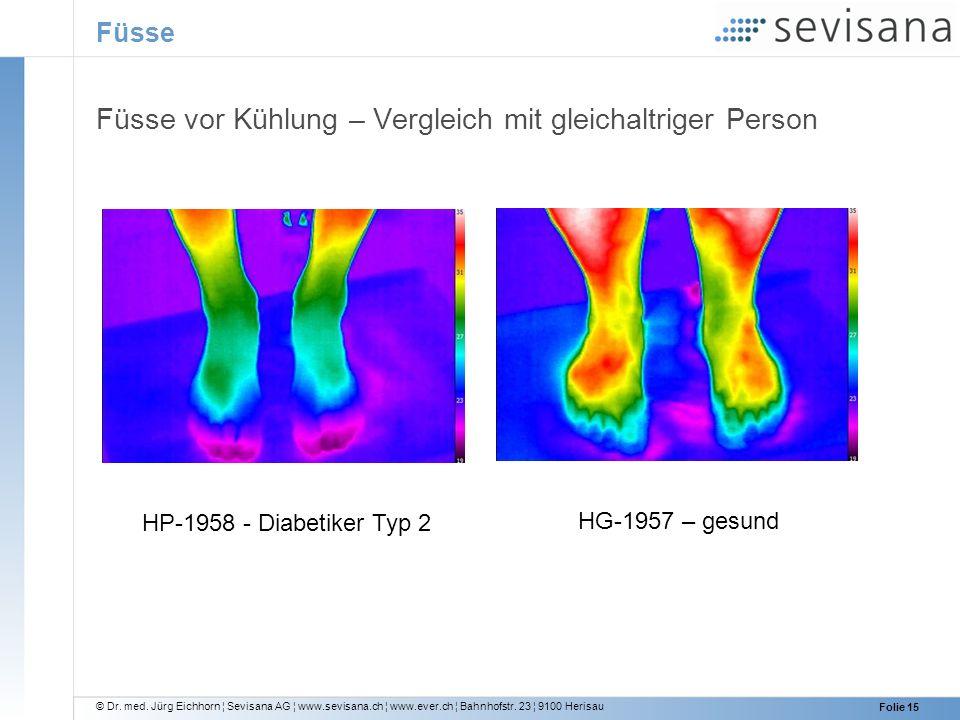Füsse vor Kühlung – Vergleich mit gleichaltriger Person