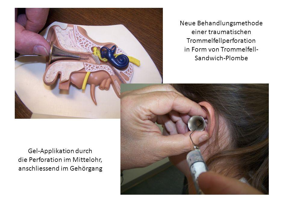 Neue Behandlungsmethode einer traumatischen Trommelfellperforation