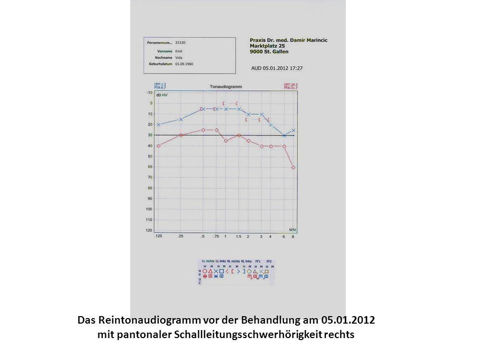Das Reintonaudiogramm vor der Behandlung am 05.01.2012