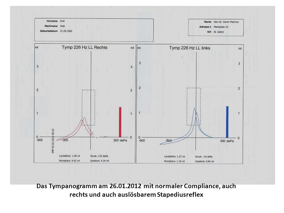 Das Tympanogramm am 26.01.2012 mit normaler Compliance, auch rechts und auch auslösbarem Stapediusreflex