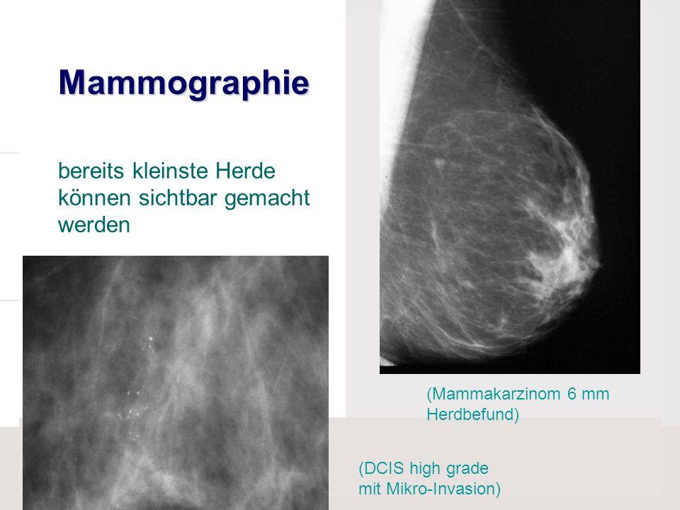 Mammographie bereits kleinste Herde können sichtbar gemacht werden