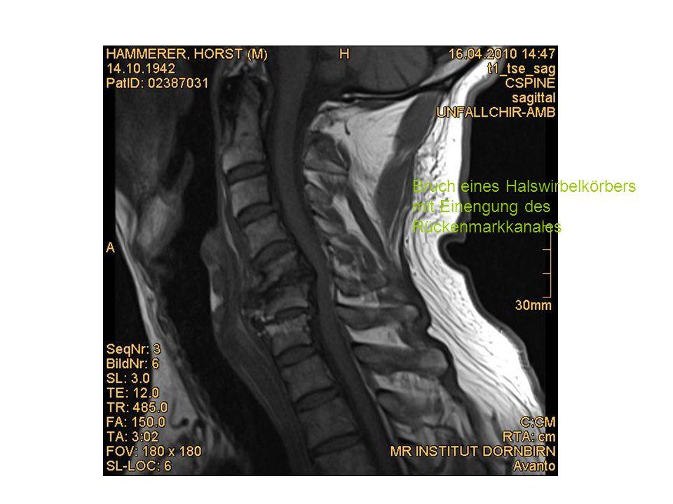 Bruch eines Halswirbelkörbers mit Einengung des Rückenmarkkanales