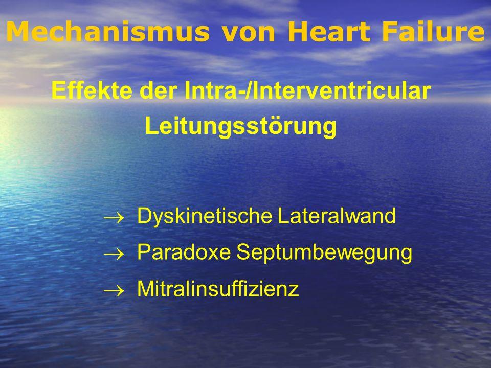 Mechanismus von Heart Failure Effekte der Intra-/Interventricular