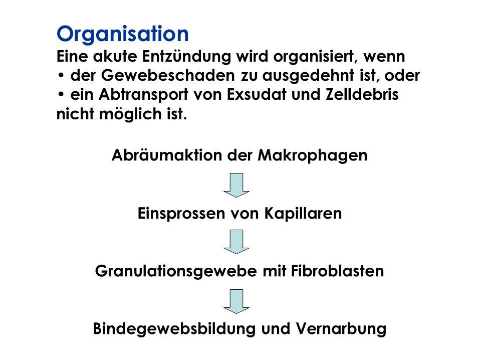 Organisation Eine akute Entzündung wird organisiert, wenn