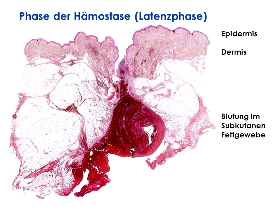 Phase der Hämostase (Latenzphase)