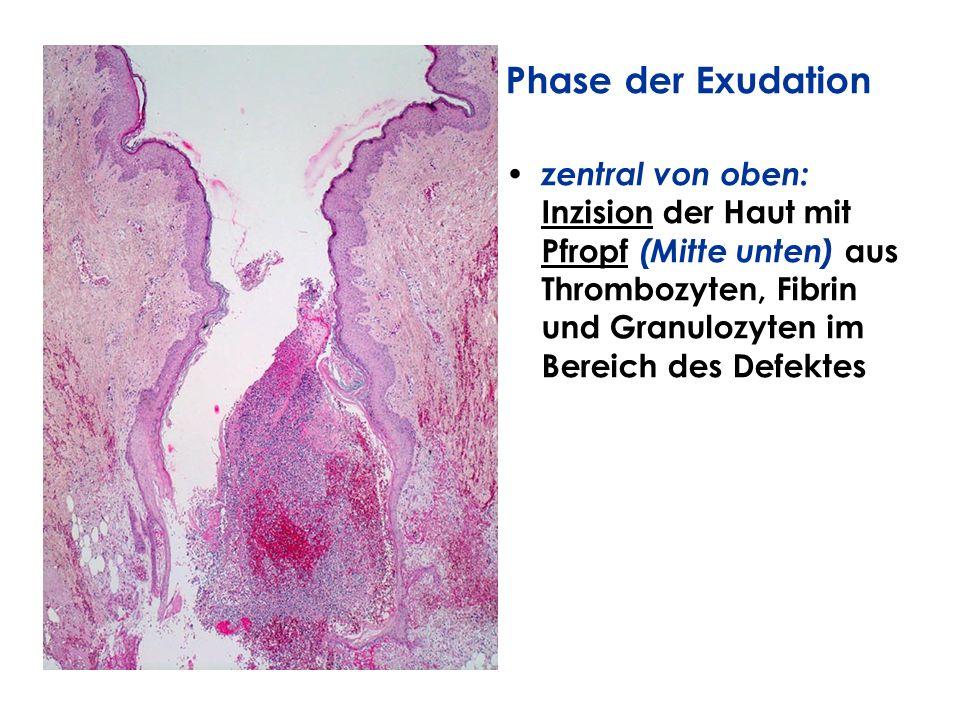 Phase der Exudation zentral von oben: Inzision der Haut mit Pfropf (Mitte unten) aus Thrombozyten, Fibrin und Granulozyten im Bereich des Defektes.