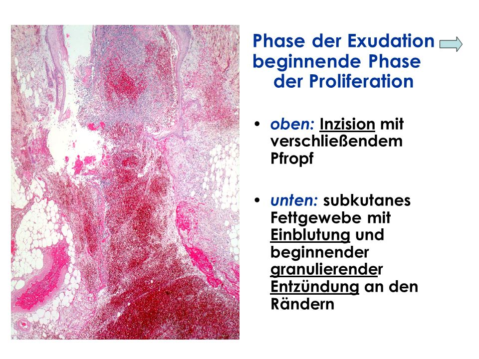 Phase der Exudation beginnende Phase der Proliferation